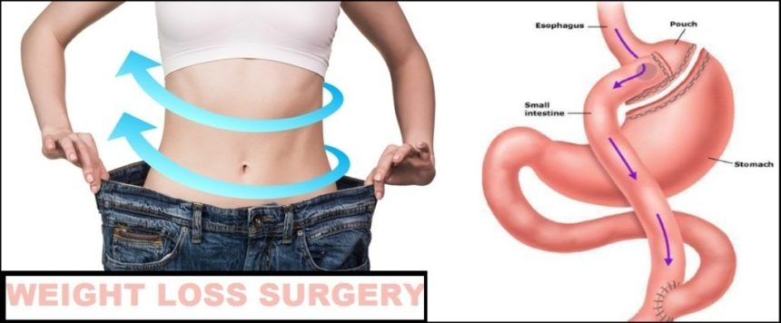 Getting Ready For Weight Loss Surgery