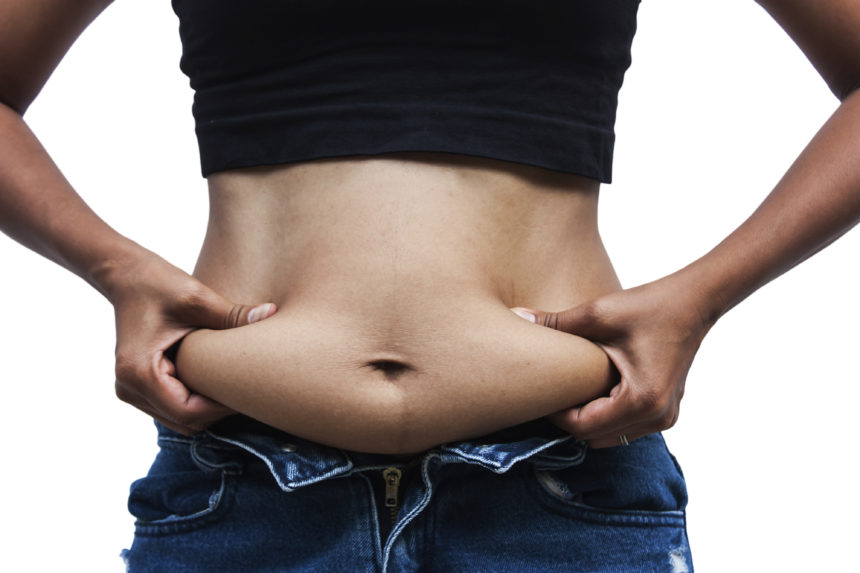 What Is The Qualification For Weight Loss Surgery And How To Finance It?