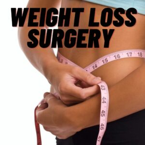 Weight loss surgery | just a few steps away from a lovely toned body